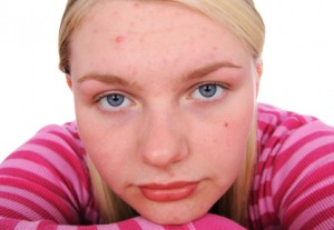 Acne: Supplements to Help